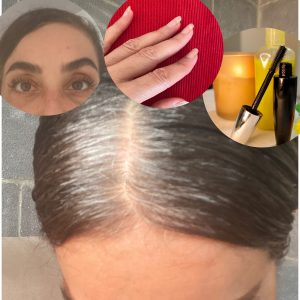 מצמיח שיער